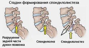 dureri articulare după o plimbare lungă inflamația tendonului în articulația umărului
